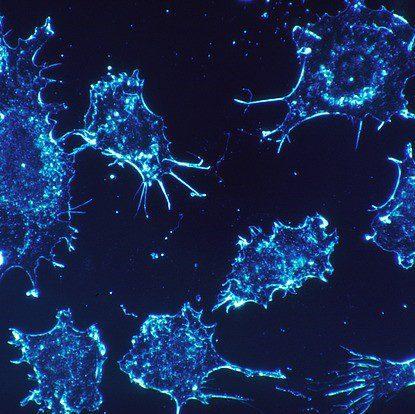 Study Illuminates Treatment Options for Different Pediatric Adrenocortical Carcinoma Stages